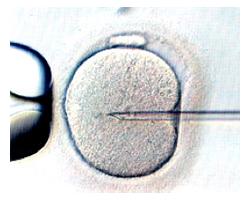 銀座レディースクリニック 顕微授精(ICSI)